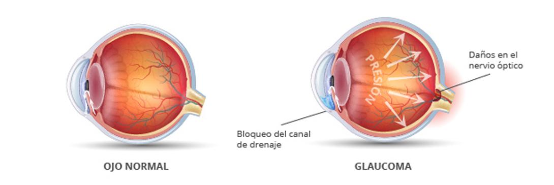 Lentes para mayores de 60 años, Glaucoma