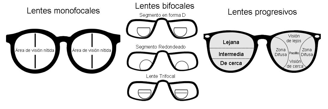 Tipos de lentes, monofocales, bifocales y progresivos